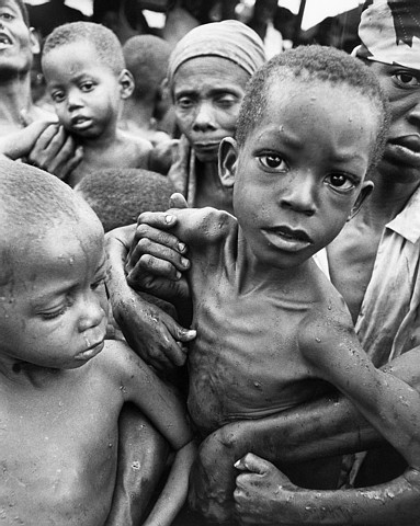 starving children in africa. be starving, but it#39;s your